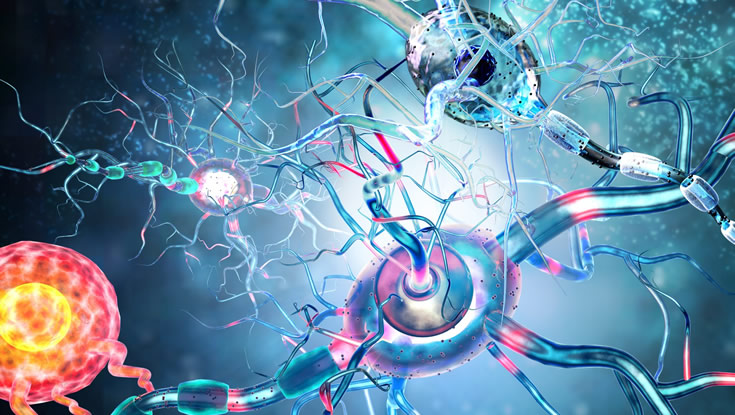 Affected nerve cells, concept for neurological diseases and tumours. Photo: iStock